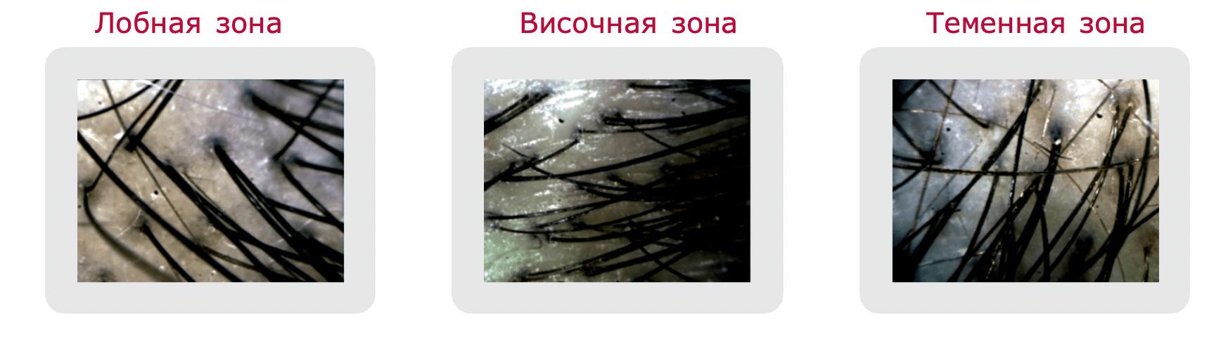 Шампунь для стимуляции роста волос для женщин crescina hfsc 100